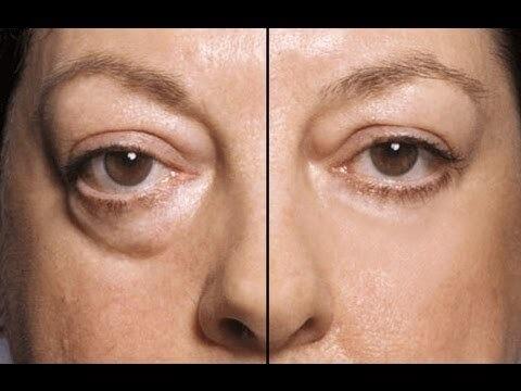 眼袋手術合併中臉拉提 - 傷口最小,效果最明顯的顏面提升手術