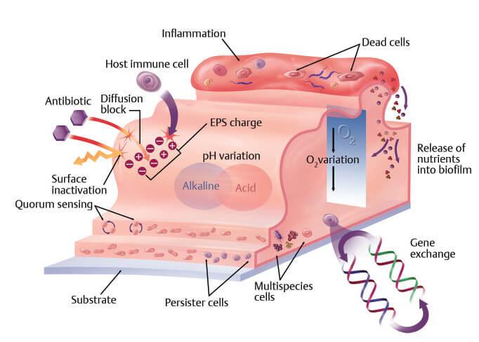 隆乳後的莢膜攣縮是什麼?莢膜攣縮按摩可以改善嗎?